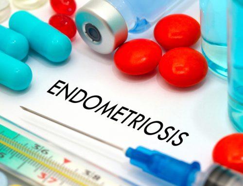 Spotlight on Endometriosis